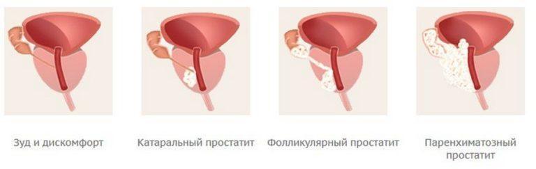 Лечение от острого простатита