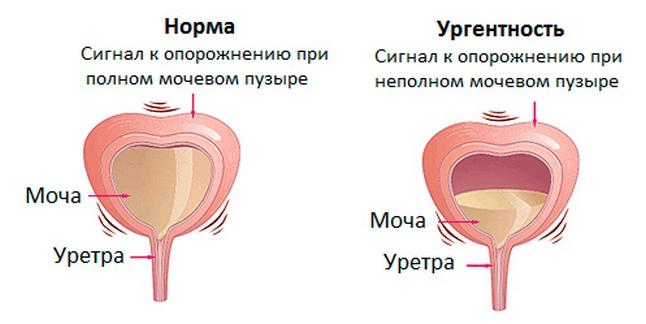 Как лечить мочевой пузырь у женщин в домашних условиях недержание мочи