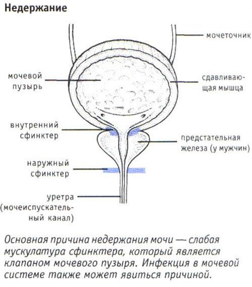 Недержание мочи у мужчин простата