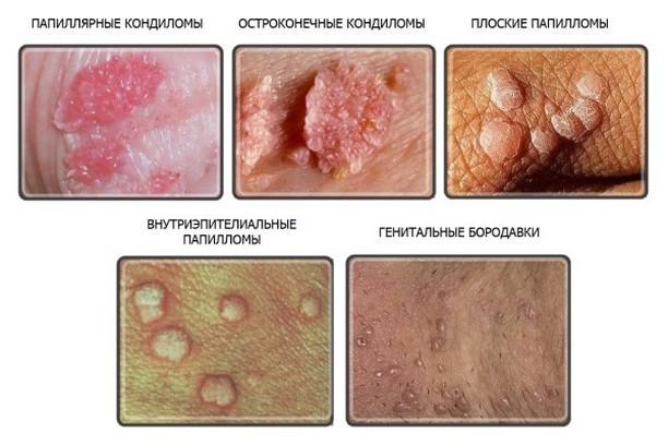 Вирус папилломы человека (ВПЧ) у мужчин: как лечить папилломавирусную инфекцию, анализы, симптомы