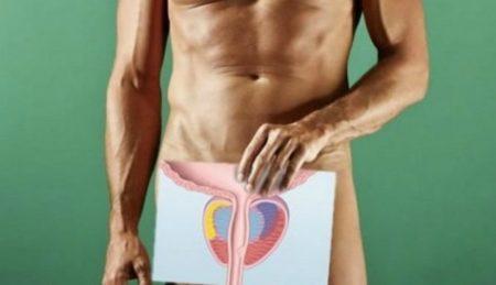 Лек препараты от простатита