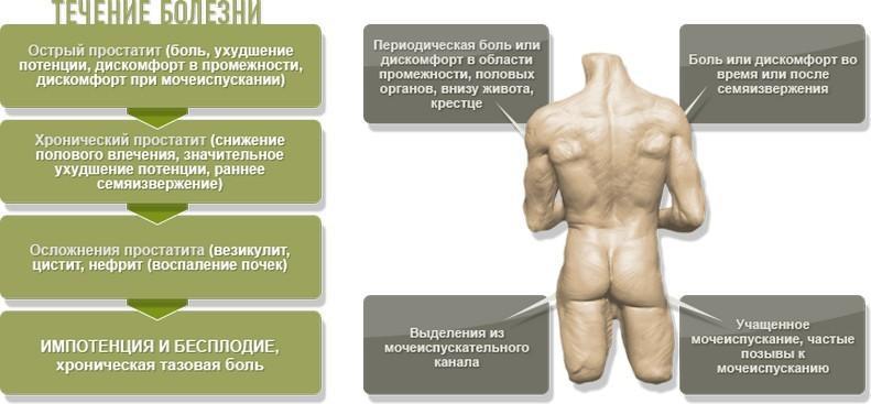Симптомы простатита у мужчин