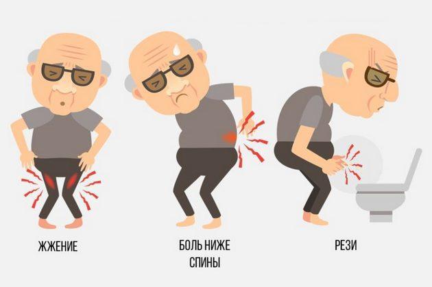 Симптомы воспаления предстательной железы у мужчин