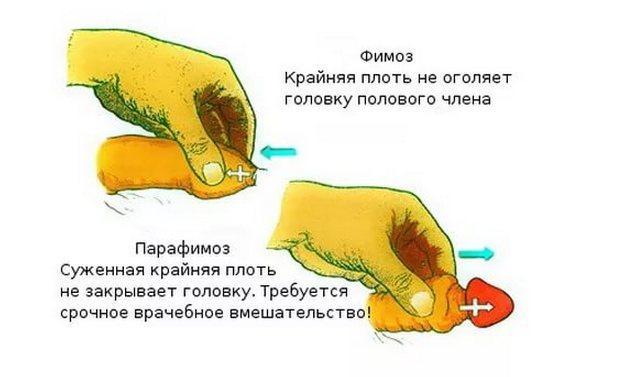 golovka-otkroetsya