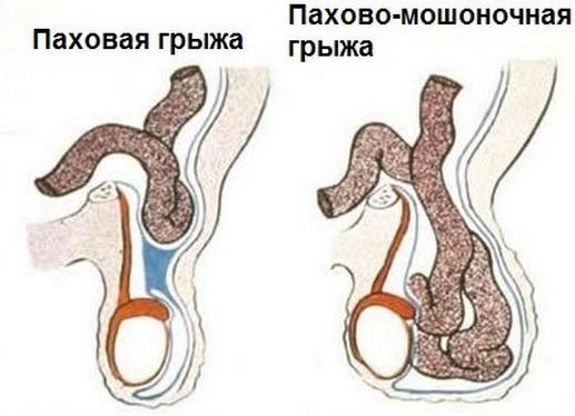 Длительное отсутствие секса приводит к гипотрофии яичка