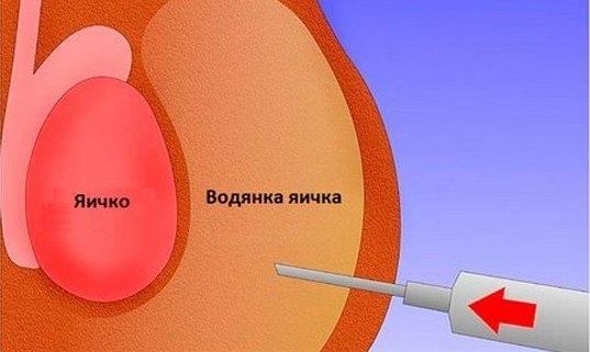 Пункция гидроцеле
