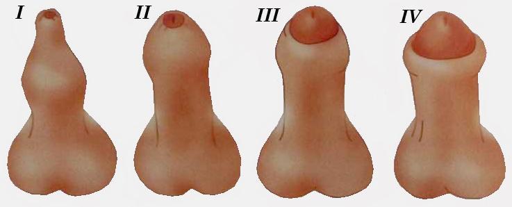 Стадии фимоза крайней плоти у мужчин