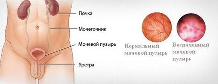 Цистит у мужчин: симптомы и лечение, лекарства от воспаления мочевого пузыря
