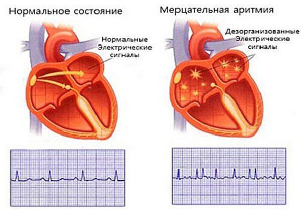 Нормальное состояние сердца и мерцательная аритмия