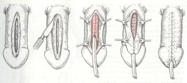 Хирургическая операция при гипоспадии у мальчиков
