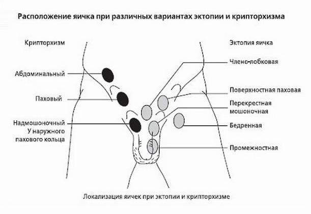 Классификация крипторхизма и эктопии яичка