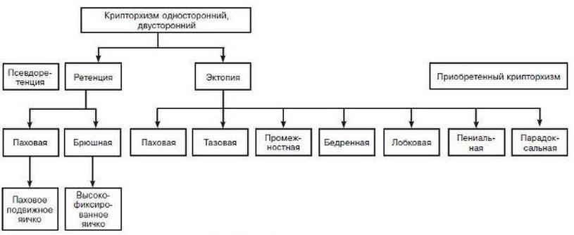 Классификация одностороннего и двустороннего крипторхизма