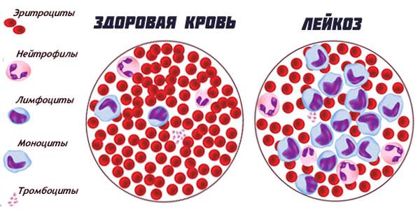 Лейкоз крови