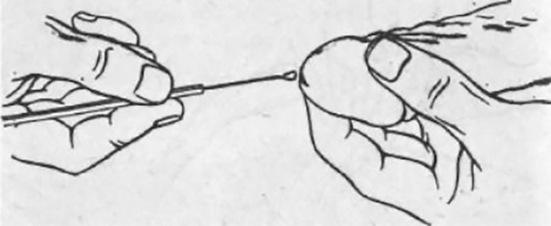 забор мазка из уретры