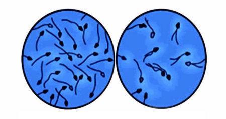 Азооспермия под микроскопом