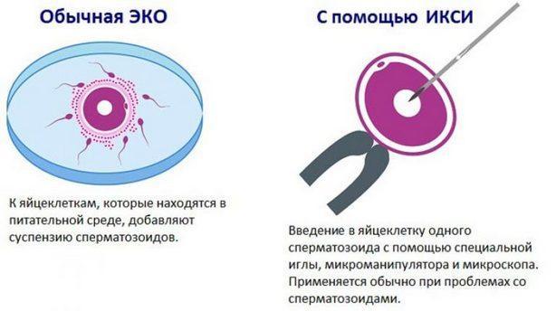 Оплодотворение с помощью ЭКО и ИКСИ