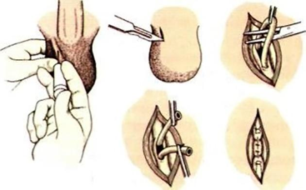 Операция вазорезекция классическим методом