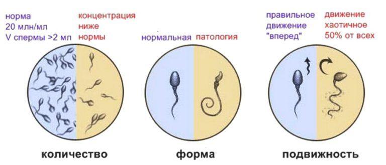 Нормы и патологии сперматозоидов