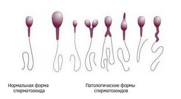 Норма и отклонения в форме сперматозоидов