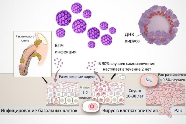 ВПЧ и рак