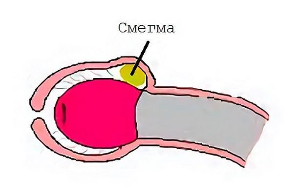Смегма