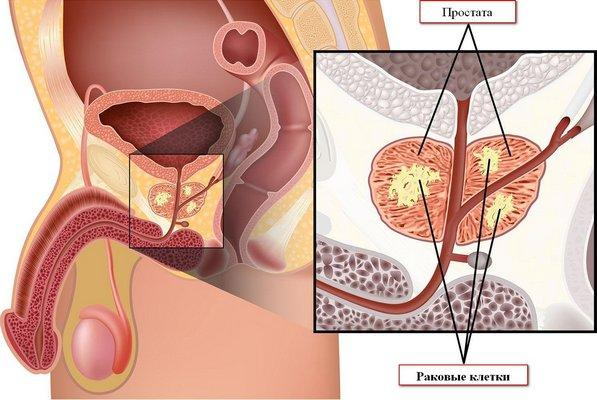 Раковые клетки в предстательной железе