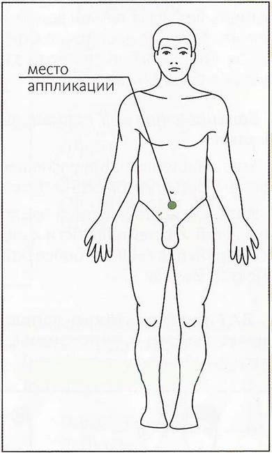 Место аппликации пластыря от простатита