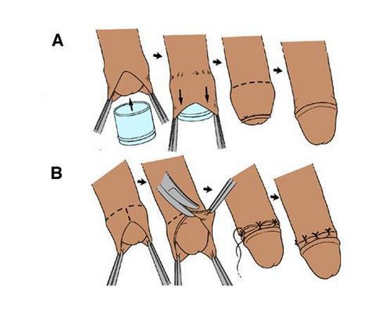 Операция по обрезанию у мальчиков