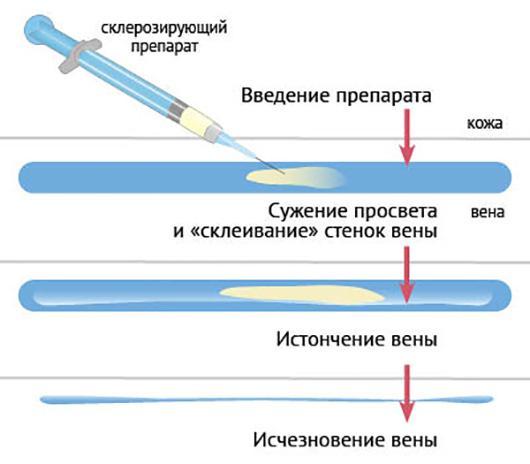 Операция склеротерапия