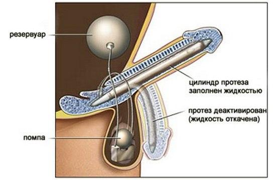 Трехкомпонентный протез полового члена