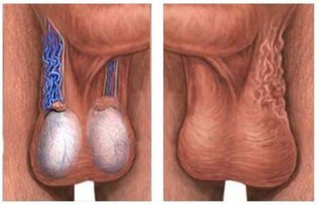 Под каким наркозом делают операцию на варикоцеле