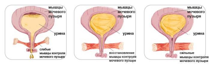 До и после укрепления мышц тазового дна