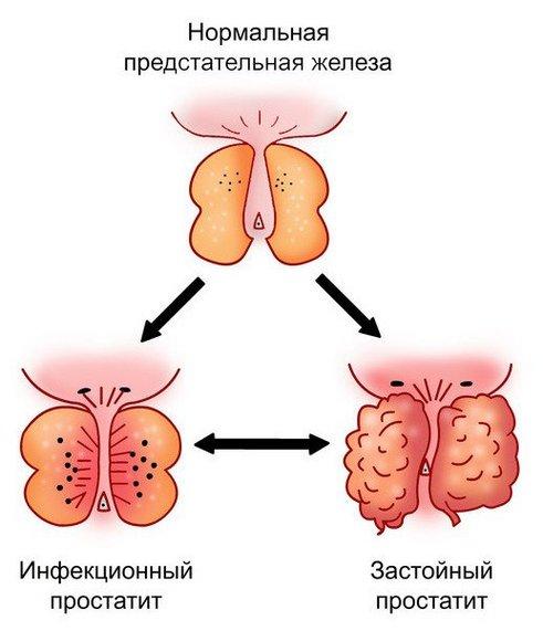 простатит аденома простата