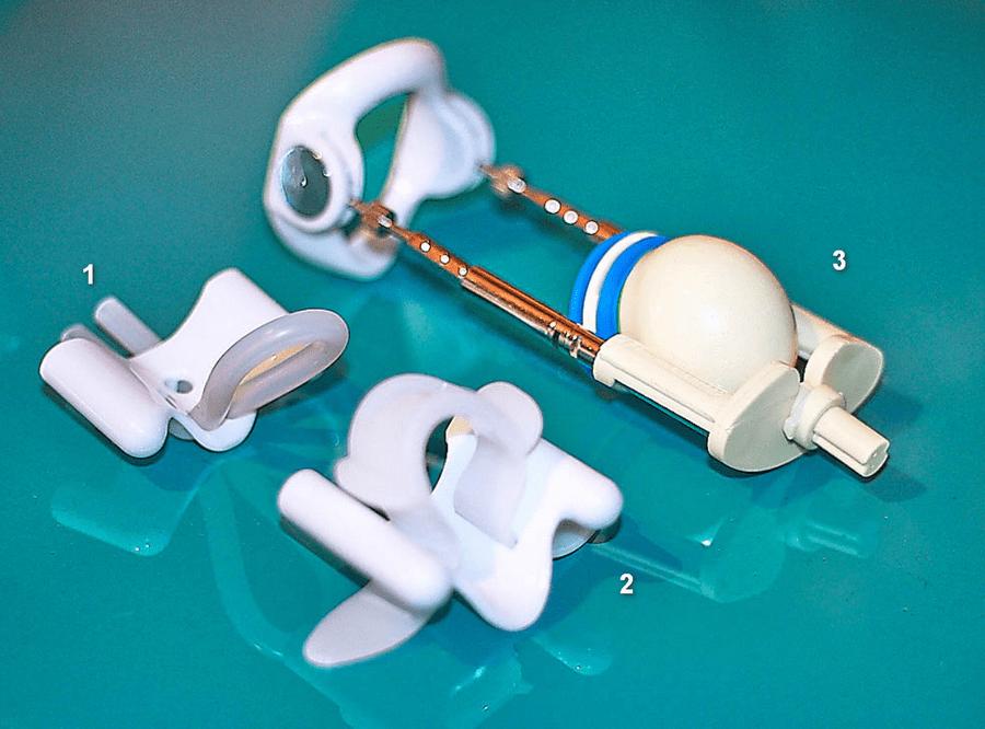 Разновидности креплений головки у экстендеров
