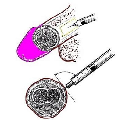 Техника введений интракавернозных инъекций