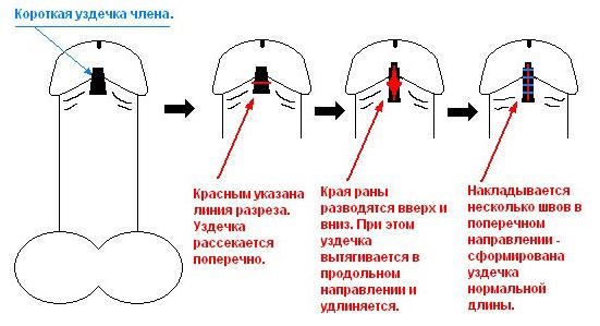 Схема проведения пластики уздечки
