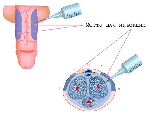 Места для введения инъекции