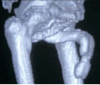 Мультиспиральная томограмма при болезни Пейрони (деформация члена в виде песочных часов)