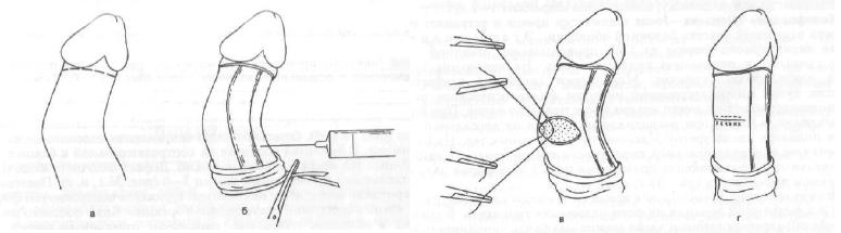 Операция Несбита (схема)