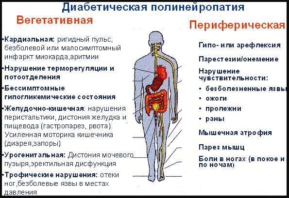 Признаки диабетической полинейропатии