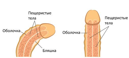 Схематичное изображение члена при болезни Пейрони