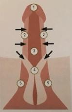 Второй вариант схемы направления волн при УВТ (вид снизу)