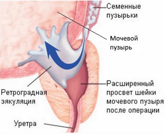 Ретроградная эякуляция