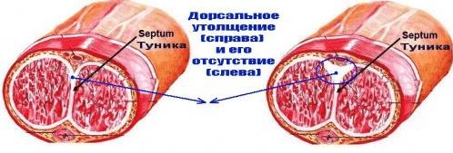 Дорсальное уплотнение полового члена