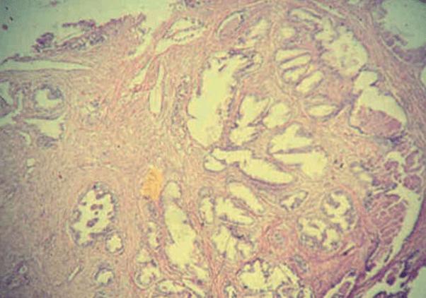 Четвертый этап развития аденомы