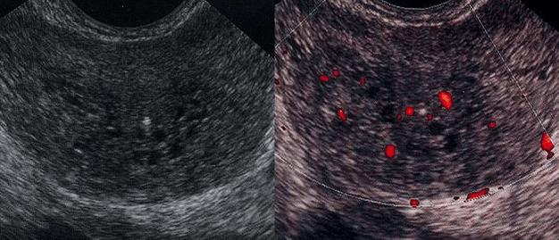 Клиническая картина острого простатита на УЗИ: эхогенность ткани снижена, характерен сотовый рисунок