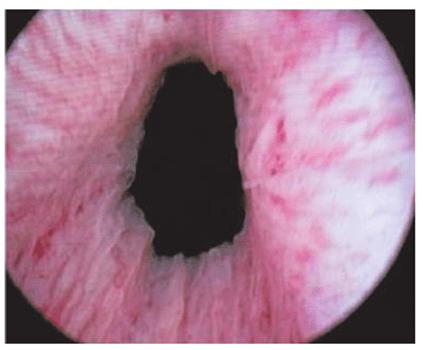 Расширенная (зияющая) шейка мочевого пузыря при цистоскопии