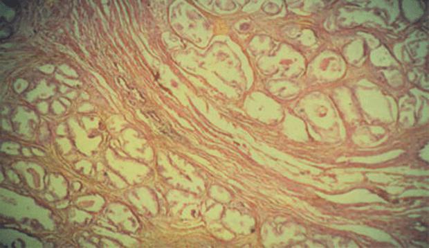 Второй этап развития аденомы
