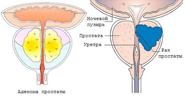 Аденома и рак простаты