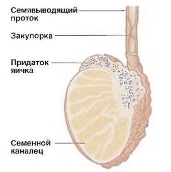 Обструкция семявыводящего протока